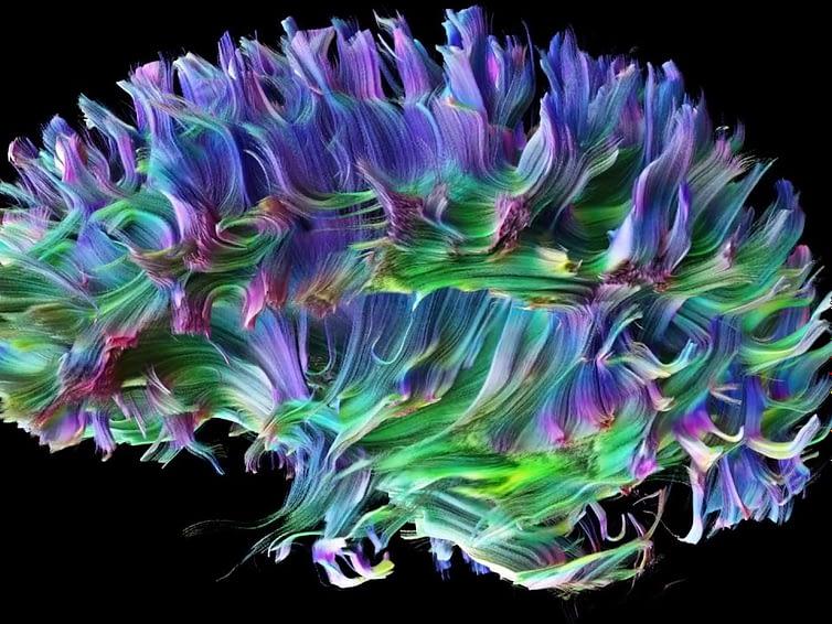 Neuromarketing e scienze cognitive
